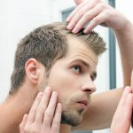 Hair Loss in Bodybuilding – A Complete Guide to Why it happens and How to Treat it