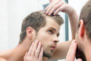 hair loss in bodybuilding