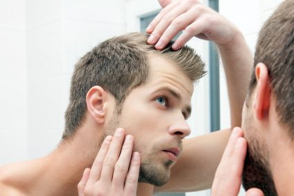 hair loss in bodybuilding